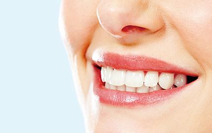 イメージ:汚れや黄ばみが取り除かれた歯