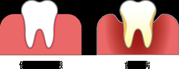 イラスト:[左]歯ぐきが健康な状態、[右]歯周病