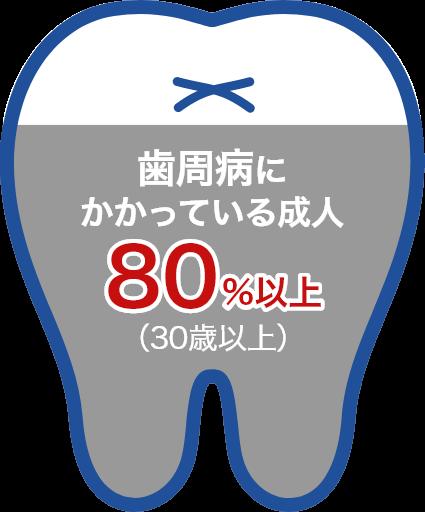 歯周病にかかっている成人約80%以上(30歳以上)